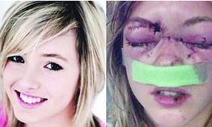 Tai nạn kinh hoàng của một VĐV tuổi teen