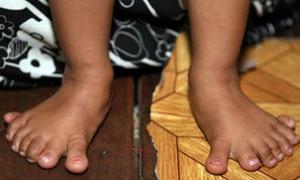 Bé gái có 26 ngón tay, chân