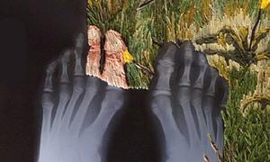 Tranh thêu từ phim chụp X-Quang