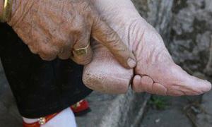 Tục bó chân kinh hoàng của phụ nữ Trung Quốc
