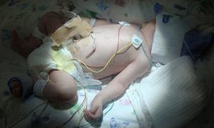 Kỳ lạ em bé sinh ra không có máu
