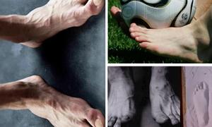 Zoom in những 'bàn chân vàng' của sao bóng đá