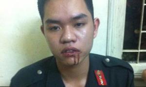 Nữ sinh viên đấm chảy máu miệng cảnh sát cơ động