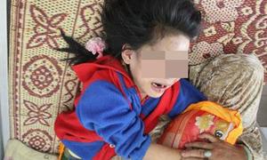 Những vụ bạo hành trẻ em gây phẫn nộ