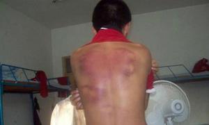 Sinh viên Việt bị đánh trọng thương ở Australia