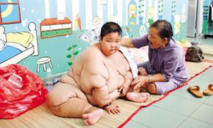 'Bé khổng lồ' Việt Nam: 13 tuổi nặng 100kg