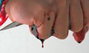 Nữ sinh tự cắt tay phản đối cô giáo