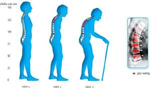 XX nên kiểm tra mật độ xương định kỳ