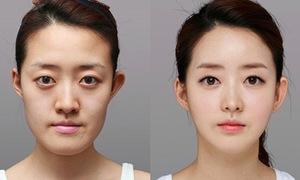 Thiếu nữ Hàn xinh bất ngờ sau phẫu thuật thẩm mỹ