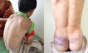Ám ảnh của học sinh 9 tuổi bị cha bạo hành