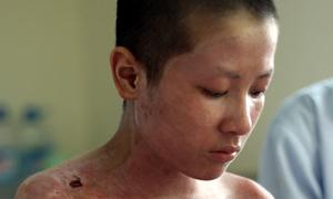Nam sinh bị sét đánh thương tật 90%