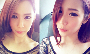 Sau mắt, teen Hàn theo mốt phẫu thuật tạo 'môi cười'
