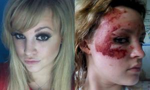 Teen girl bị bỏng nặng vẫn thi Hoa hậu