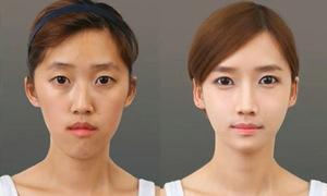 Thiếu nữ Hàn thô kệch hóa 'thiên nga' sau khi gọt cằm