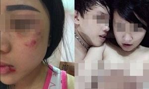 Nữ sinh bị bạn trai đánh sưng mặt, tung ảnh nóng hậu chia tay