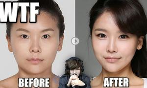 Nhan sắc con gái trước và sau khi đeo kính giãn tròng