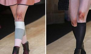 Dàn người mẫu catwalk với đầu gối bầm tím, trầy xước