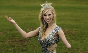 Người đẹp một tay tranh ngôi Hoa hậu Mỹ