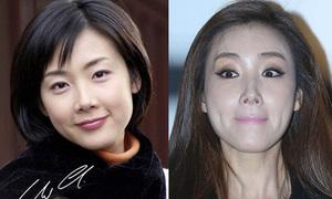 Mặt Choi Ji Woo ngày càng xộc xệch, cứng nhắc