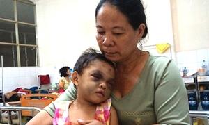3 tình tiết nhói lòng vụ bé gái bị đánh biến dạng mặt