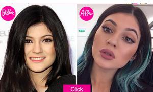 Kylie Jenner bị đồn gọt mặt, bơm môi khi chưa đủ 18 tuổi