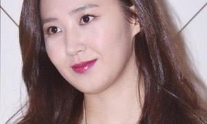 Yuri mắc lỗi trang điểm, lép vế trong sự kiện thời trang