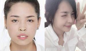 Những cô gái Việt hóa 'thiên nga' thần kỳ nhờ phẫu thuật thẩm mỹ