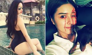 Sao Việt 22/3: Huyền Baby gắn mác 'siêu vòng 3', Lilly Luta mặt đầy máu