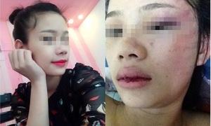 Thiếu nữ đăng ảnh kỷ niệm bị người yêu đánh lần thứ năm