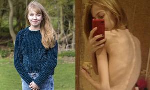 Những cô gái hóa 'bộ xương di động' vì điên cuồng giảm cân