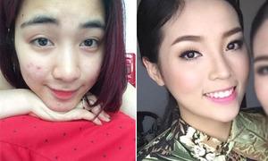 Sao Việt 3/5: Hòa Minzy mặt chi chít mụn, Kỳ Duyên bị nghi tiêm cằm
