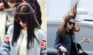 Những sự cố về tóc khiến sao Hàn khó xử