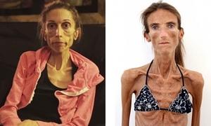 Kinh hãi 4 cô gái gầy như xác ướp vì quá mê giảm cân