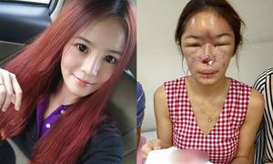Hot girl Thái 'nát mặt' vì phẫu thuật thẩm mỹ hỏng