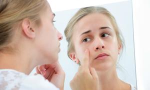 7 vị trí mọc mụn 'tố cáo' tình trạng sức khỏe của bạn