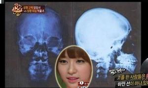 Fan tung ảnh X-quang của Hani để phản pháo tin thẩm mỹ
