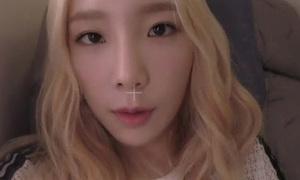 Tae Yeon bị nghi phẫu thuật để mắt có chiều sâu hơn