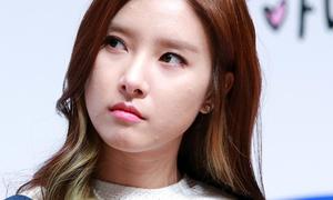 Kim So Eun lộ mặt lấm tấm mụn