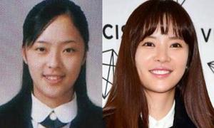 2 nữ chính của 'She Was Pretty' vướng tin đồn phẫu thuật thẩm mỹ