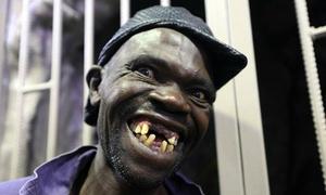 Cuộc thi 'Người đàn ông xấu nhất' ở Zimbabwe