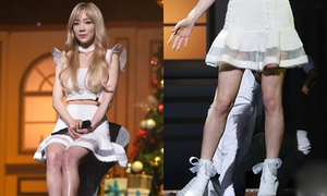 Tae Yeon lộ chân tím tái, chằng chịt gân