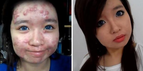 Các cô gái dùng kem nền, kem che khuyết điểm và đánh phấn dày để giấu mặt mụn. Tuy nhiên, makeup cũng khiến tình trạng mụn trở nên tồi tệ hơn.