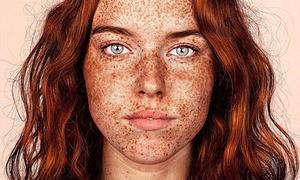 Bộ ảnh tôn vinh vẻ đẹp của những cô gái bị tàn nhang
