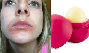 Son trứng EOS được chứng minh lành tính, không gây rộp môi