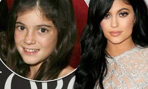 Hành trình thay đổi nhan sắc hút 50 triệu follow Instagram của Kylie Jenner