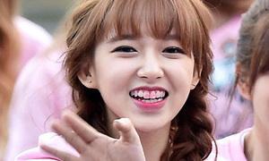 Sao Hàn đang xinh bỗng 'chán hẳn' vì lỗi son dính răng
