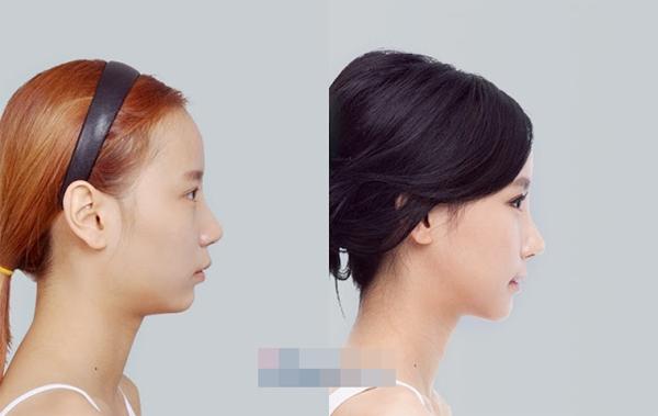 Gương mặt thon đúng chuẩn Vline của Han Ahreum Songi