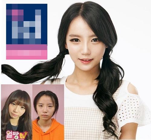 Sự khác biệt thể hiện rõ trên gương mặt của Han Ahreum Songi  trước và sau khi phẫu thuật thẩm mỹ.