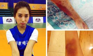 Sao Hàn 5/5: Bora tay chân bầm dập, Qri 30 tuổi vẫn xì tin như thiếu nữ