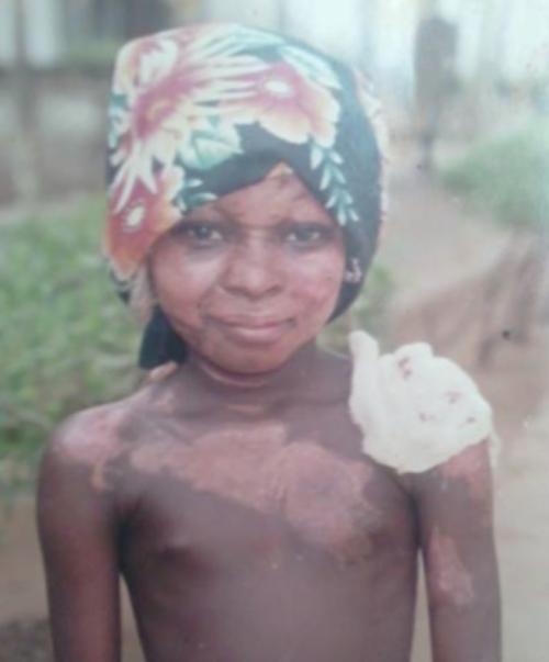 Năm 9 tuổi, Shalom Nchom bị dầu nóng chảy lên người khi đang ngủ dẫn đến bỏng   nặng khắp đầu, mặt và rải rác nhiều vùng trên cơ thể.